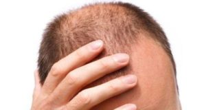 men type alopecia